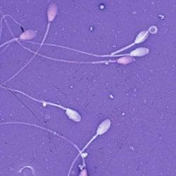 Подготовка на спермата