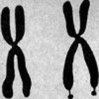Синдром на чупливата Х-хромозома