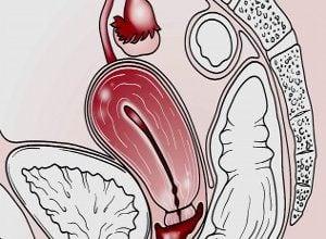 Photo of Проблеми на матката – Безплодие
