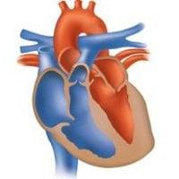 Сърдечно – съдови заболявания при новородените