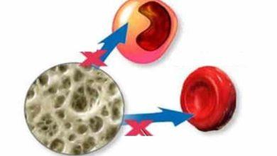 Photo of Тежка комбинирана имунна недостатъчност