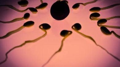Photo of Клинично значение на спермалната морфология