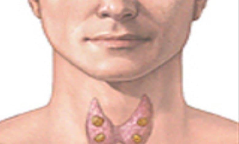 МАТ антитела