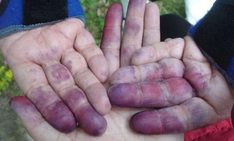 Мръсните ръце разболяват