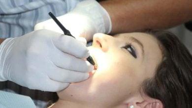 Photo of Как да съхраним здравето на зъбите си по време на бременност